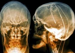 kich-thich-nao-sau-deep-brain-stimulation